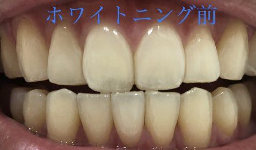 ホワイトクリアパックの使用前のビフォー写真 ホワイトクリアパック 効果 比較