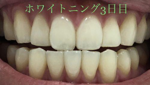 ホワイトクリアパック使用後のアフター写真 ホワイトクリアパック効果 比較