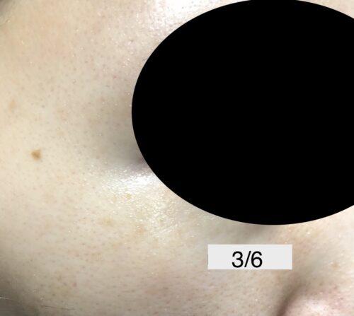 sarlisi 脱毛器 シミ 毛穴 検証 ビフォーアフター アフター写真
