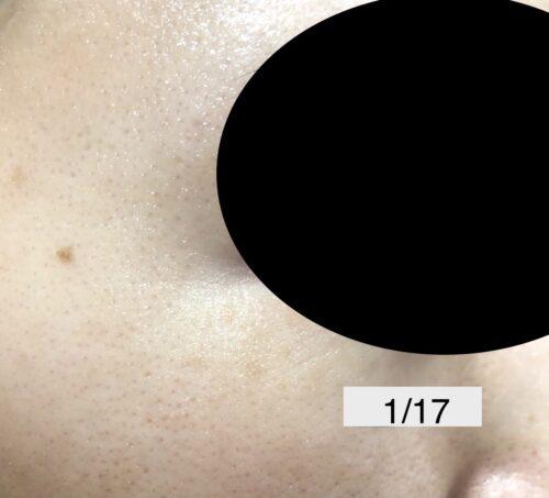 sarlisi 脱毛器 シミ 毛穴 消える 検証 ビフォーアフター 写真