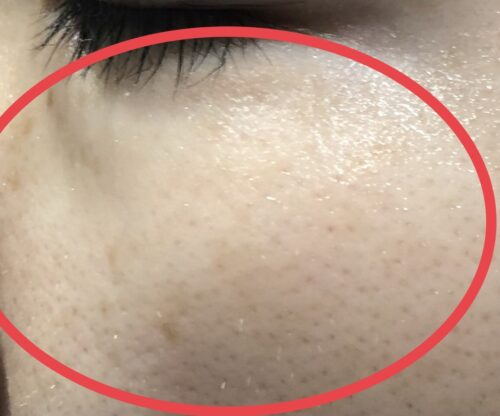 sarlisi 脱毛器 シミ 毛穴 消える ビフォーアフター アフター写真
