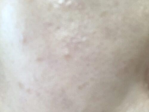 アテニア化粧水乳液で肌荒れ